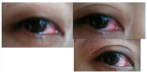 bad eyes